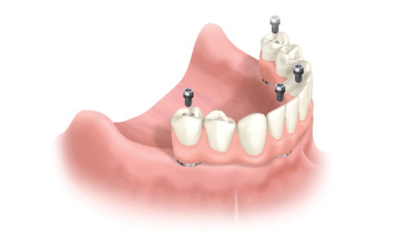 All-On-4 Implants Apple Valley
